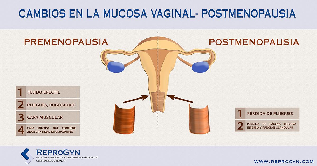 atrofia vaginal anatomía VAGINA