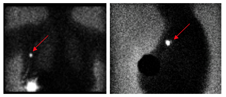 limfogammagrafia